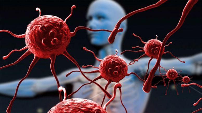 СНІД - ВІЛ-інфекція
